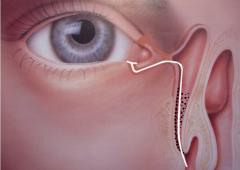 Fig. 1. Monocanalicular intubation through the lower lacrimal canaliculus.